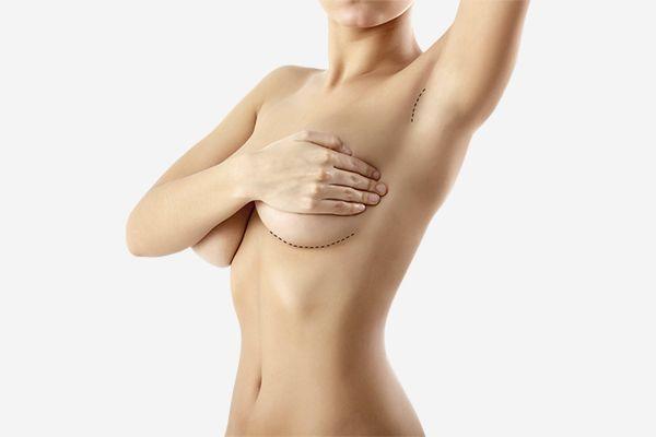 Cirugía de Aumento Mamario