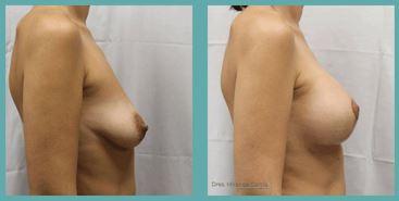 pechos operados antes y despues