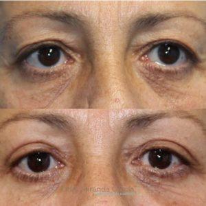 antes y despues blefaroplastia